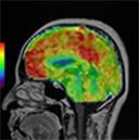 非造影脳灌流画像
